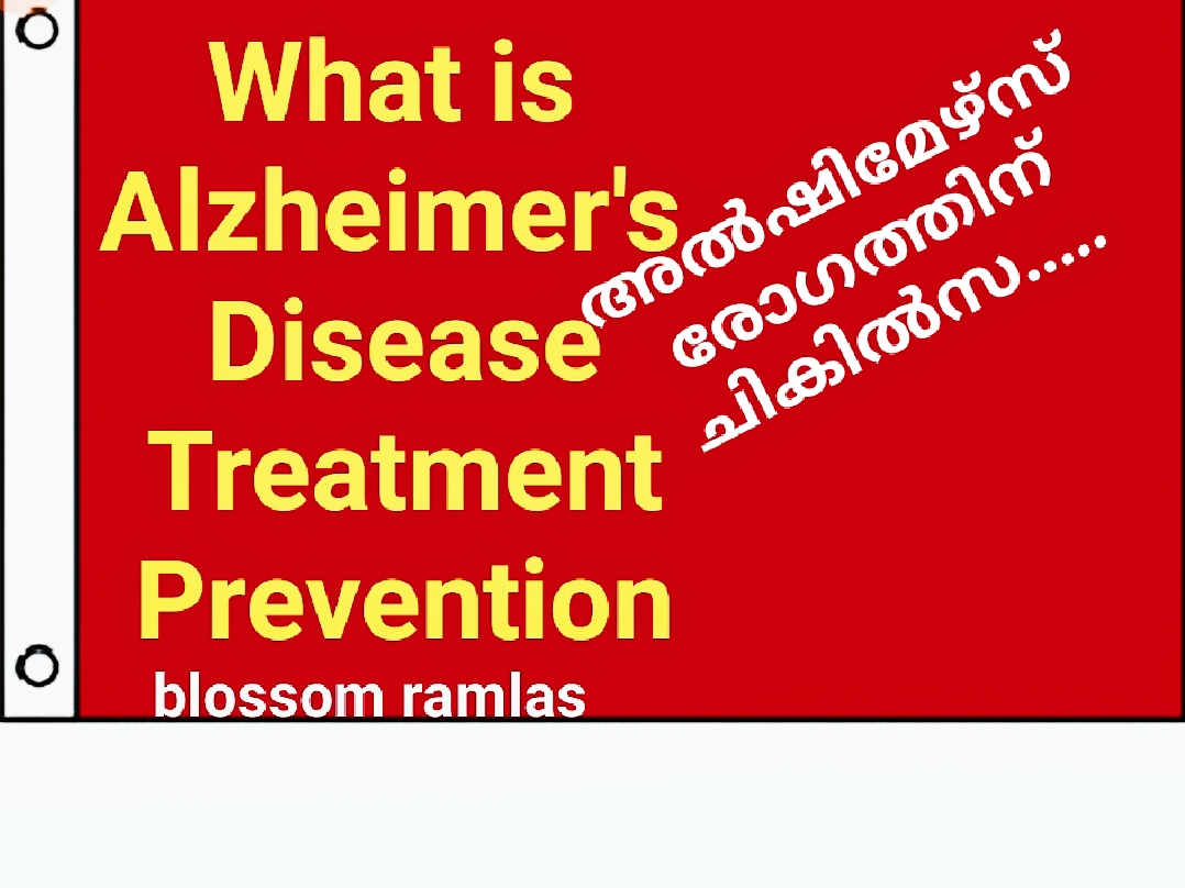 What is Alzheimer's disease, prevention & Treatment